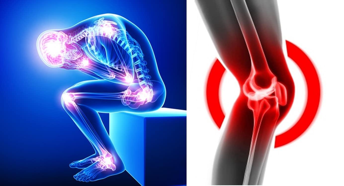 Praskání, křupání a lupání v kolenou může být prvním znakem osteoartrózy - Bolest Kolena